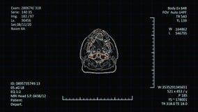 Esame di radiologia del futuro archivi video