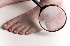 Esame medico a piedi fotografie stock