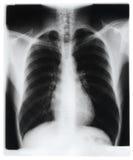 Esame radiografico del torace fotografia stock