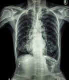 Esame radiografico del torace del paziente anziano (calcificazione alla costola, alla trachea, al bronco) Fotografia Stock Libera da Diritti