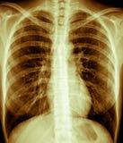 Esame radiografico del torace, femmina Immagini Stock Libere da Diritti