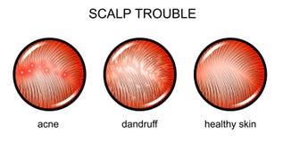Escalpe incomodado dermatology ilustração royalty free
