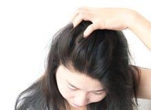 Escalpe sarnento da mão da mulher do close up, conceito dos cuidados capilares Imagem de Stock