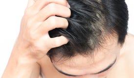 Escalpe sarnento da mão do homem do close up, conceito saudável do cuidado do cabelo Foto de Stock