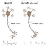 Esclerose múltipla Fotografia de Stock Royalty Free