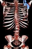 Escoliose. Reconstrução da CT-varredura de Sceleton Foto de Stock Royalty Free
