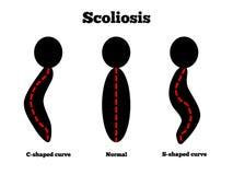 Escoliosis stock de ilustración