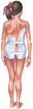 Escoliosis - chica joven en un apoyo espinal Fotos de archivo