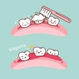 Escova de dentes e gengivite dos desenhos animados Imagens de Stock