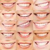 Esempi dei sorrisi femminili Fotografia Stock Libera da Diritti