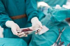 Esemplare del polmone di manifestazione del chirurgo dopo chirurgia fotografie stock