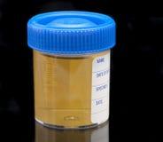 Esemplare dell'esame delle urine Fotografia Stock