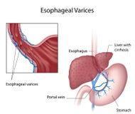 Esophageal κιρσοί ελεύθερη απεικόνιση δικαιώματος
