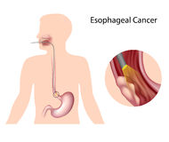 Esophageal cancer. And diagnosis by endoscopy technique Stock Photo
