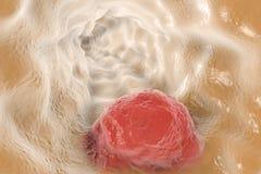 Esophageal cancer, illustration stock illustrationer