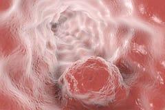 Esophageal cancer, illustration vektor illustrationer