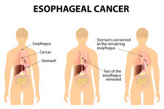 Esophageal Cancer stock illustration