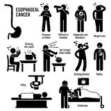 Esophageal Esophagus Throat Cancer Clipart. Set of illustrations for esophageal esophagus throat cancer disease which include the symptoms, causes, risk factors Stock Images