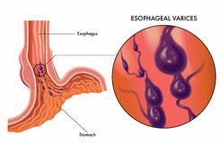 Esophageal varices medical illustration Stock Photography