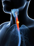 Esophagus cancer Stock Photos
