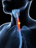 Esophagus cancer. 3d rendered illustration of esophagus cancer Stock Photos