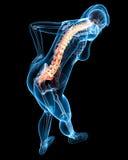 Espalda destacado dolor en hembra Fotos de archivo
