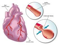 Espasmo de la arteria coronaria Imagenes de archivo