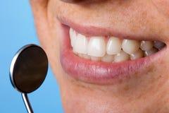 Espelho e dentes do dentista fotografia de stock