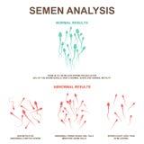 Esperma normal e anormal ilustração stock