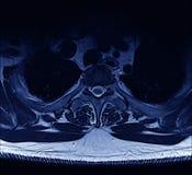 Espina dorsal de MRI Foto de archivo libre de regalías