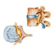 Espina dorsal - disco deslizado o roto herniado Fotografía de archivo