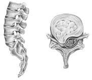 Espina dorsal - disco intervertebral roto Imagen de archivo