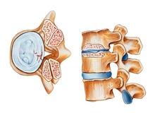 Espina dorsal - estenosis espinal Fotos de archivo libres de regalías