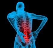 Espina dorsal humana en la opinión de la radiografía, dolor de espalda Imagen de archivo libre de regalías