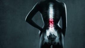 Espina dorsal humana en radiografía almacen de video