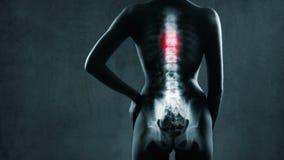 Espina dorsal humana en radiografía almacen de metraje de vídeo