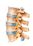 Espina dorsal - irritación del nervio espinal Foto de archivo