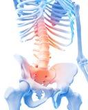 Espina dorsal lumbar dolorosa Foto de archivo libre de regalías