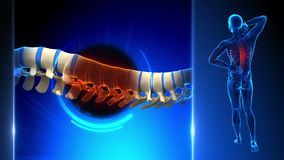 Espinha dorsal ferido do homem - dor das vértebras ilustração stock