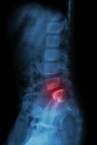 Espinha lombar da criança e da inflamação na espinha lombar (lombalgia) (raio X torácico - espinha lombar) (vista lateral) imagens de stock royalty free