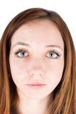 Espinilla de la cara de la mujer Imagen de archivo libre de regalías