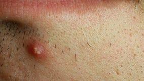 Espinilla debajo de la piel masculina del labio, no preparada y ditry, macro metrajes