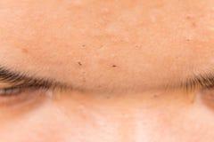 Espinillas, acné, zit y espinillas feos en la frente de un adolescente Imagen de archivo