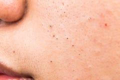 Espinillas, acné, zit y espinillas feos en la mejilla de un adolescente Foto de archivo libre de regalías