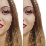 Espinillas antes y después fotografía de archivo