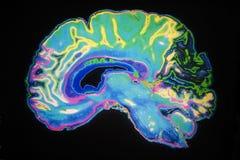 Esplorazione colorata di MRI del cervello umano Fotografie Stock Libere da Diritti