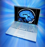 Esplorazione del cervello sul calcolatore Fotografia Stock Libera da Diritti