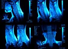 Esplorazione del collo di MRI Fotografia Stock
