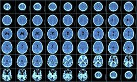 Esplorazione di CT del cervello Fotografia Stock Libera da Diritti