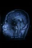 Esplorazione di MRI fotografia stock